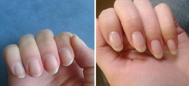 Хотите быстро отрастить ногти? Чтобы они никогда не ломались? Тогда используйте это простейшее средство!