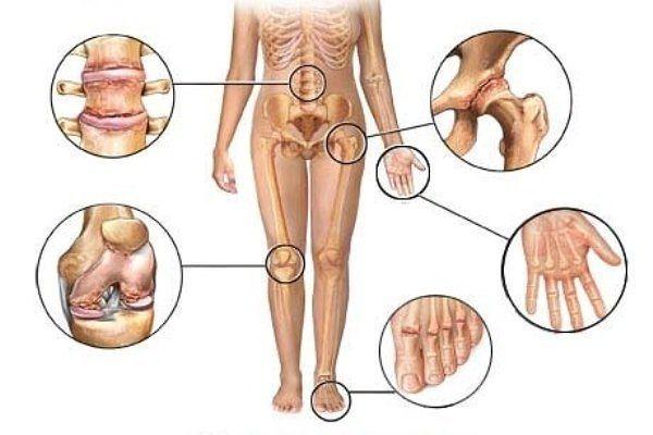 Великолепное средство, которое эффективно восстанавливает суставы и кости. Избавляет от болей в коленях!