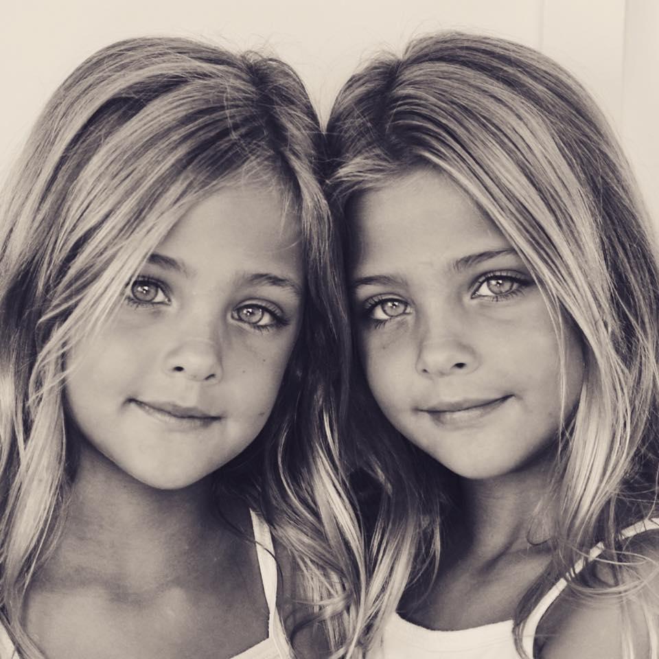 Хотите увидеть фото однояйцевых близнецов, которых считают самыми красивыми в мире? Смотрите на этих девочек!