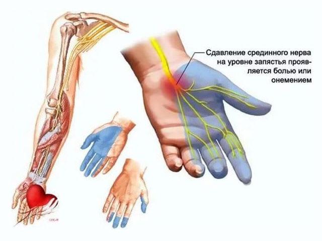 сожалению! при шейном остеохондрозе немеет левая рука же