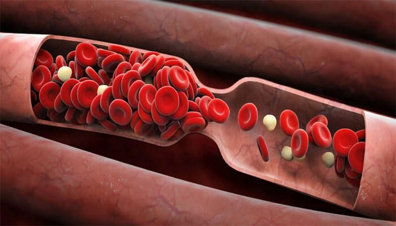 Говорит Дроженников: «Густая кровь – прямая дорога к инсульту, инфаркту и другим проблемам. И вот как справиться с неприятностью!»