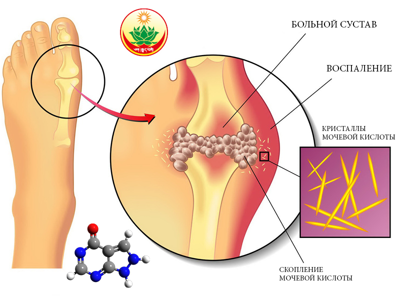Соли мочевой кислоты в суставах чем вывести болят суставы у кормящей матери
