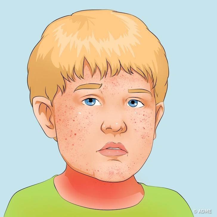 10 детских заболеваний, о которых родители должны быть предупреждены