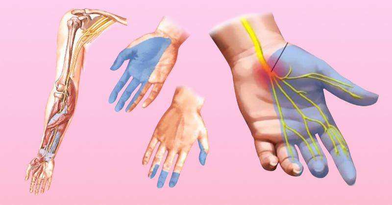 Причины онемения рук – 7 основных причин, которые заставляют уделить внимание здоровью